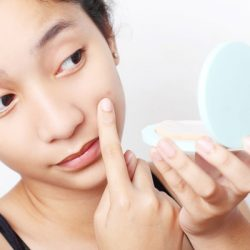 New Guideline for Treating Acne, Released!