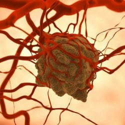 Gene therapy technique may help prevent cancer metastasis