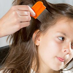 Hair Care Tips To Prevent Lice
