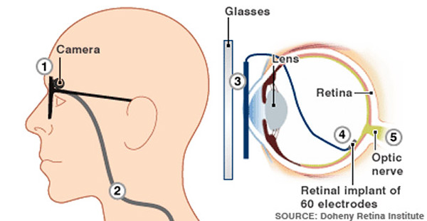 The Argus II Retinal Prosthesis System: Sight for the Blind