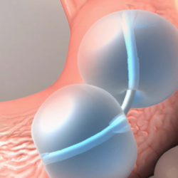 Dual Gastric Balloon For Treatment Of Obesity