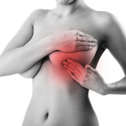 Most women unaware of breast density's effect on cancer risk