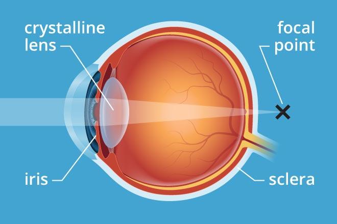 Presbyopia