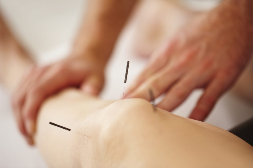 Real acupuncture