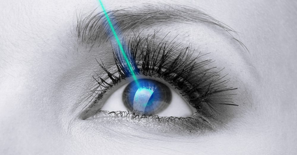 Laser Surgery for Myopia
