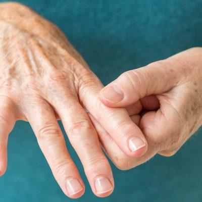 How Vitamin D Affects Rheumatoid Arthritis