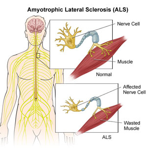 Amyotrophic lateral sclerosis - Top 10 Worst and Dangerous Incurable