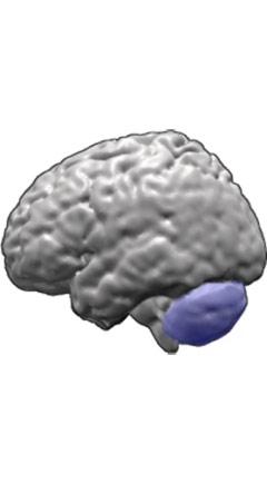 Spinocerebellar ataxia