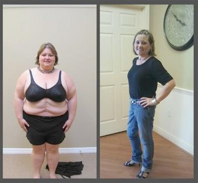 Duodenal switch: A Weightloss Option