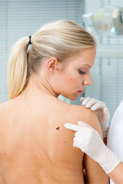 Top 10 Deadly Myths About Skin Cancer