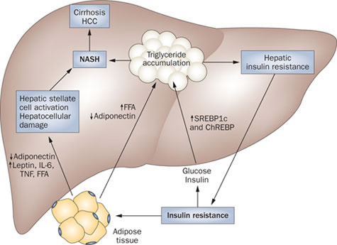 Non-Alcoholic Fatty Liver Disease (NAFLD): Symptoms & Treatment
