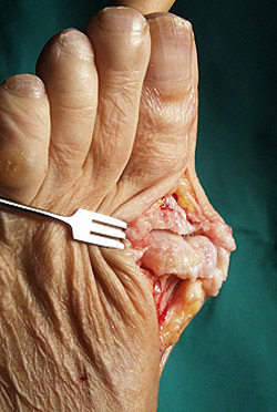 Hallux Rigidus: a Degenerative Toe Arthritis
