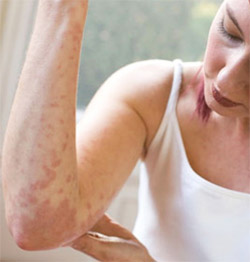Urticaria: A Distressing Disorder