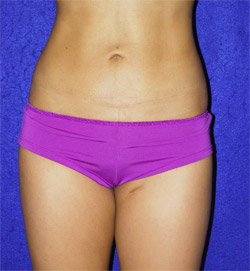 Abdominal Liposuction: Surgical Removal of Excess Fat