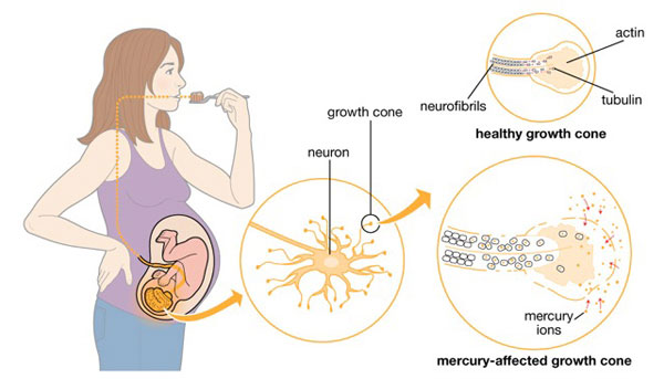 Methylmercury: Mercury toxicity through Diet