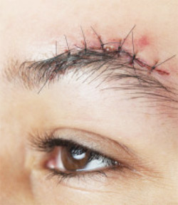 Scar Prevention: Dos and Don'ts