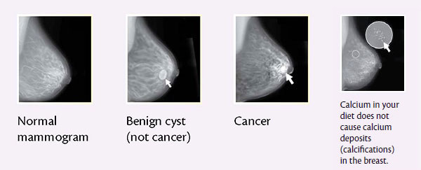 Mamography: the Breast Cancer Screening Tool