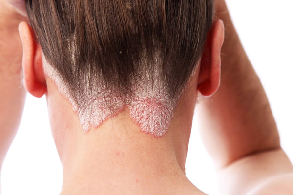 Studies have shown that stress and psoriasis go together 3