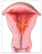 Endometritis - Gutturalition - Promo 2012