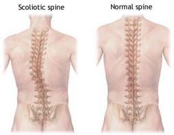 Normal Spine vs Scoliosis