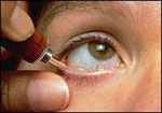 chalazion removal steroid injection
