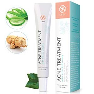 Acne Cream - Anti Acne Cream with Aloe and Ginseng - Advanced Acne Removal Healthy Oil Balance