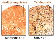 after quitting smoking how to clean lungs