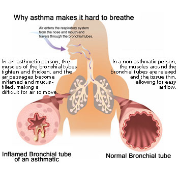 case study on bronchial asthma in acute exacerbation