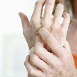 Researchers find gene that confirms existence of psoriatic arthritis: University of Manchester Study