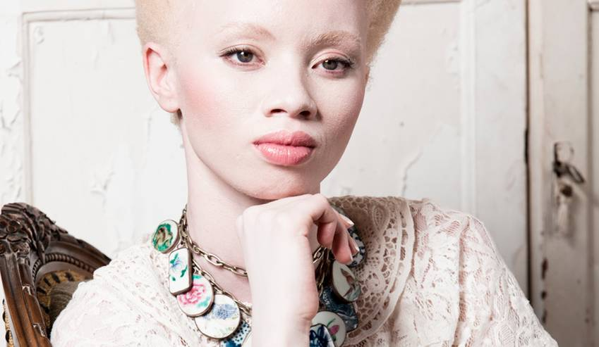 Living with Albinism
