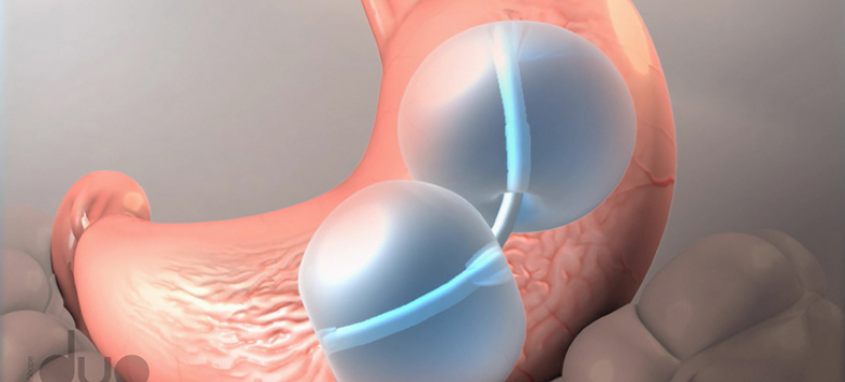 Dual Gastric Balloon For Treatment Of Obesity Women Fitness