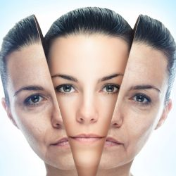 Skin Resurfacing – Opting For Chemical Peel