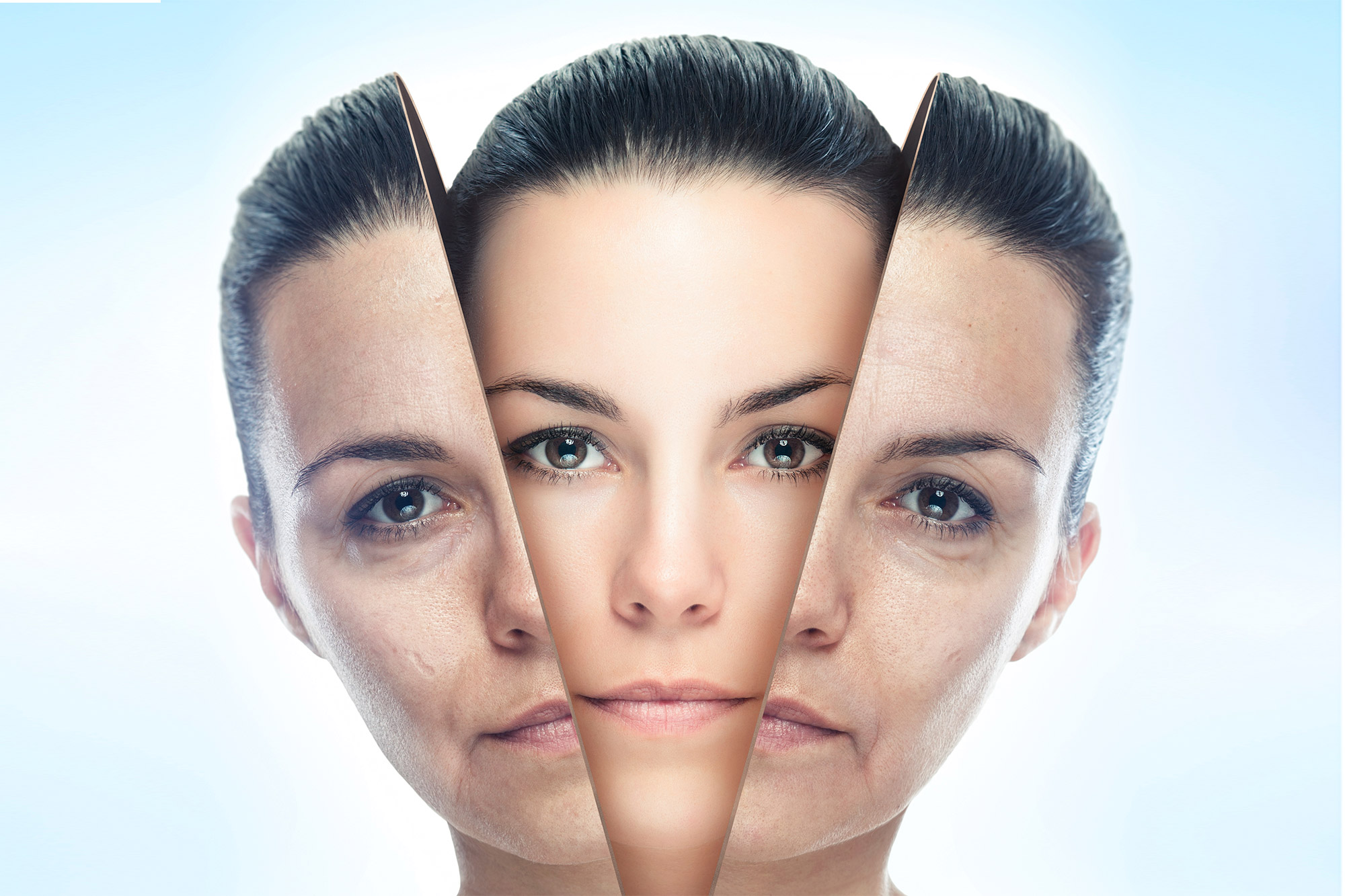 Skin Resurfacing - Opting For Chemical Peel - Women Fitness