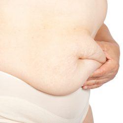 Top 10 Reasons Surgery Might-be A Weight Loss Option in 2017