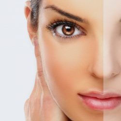 Skin Lightening: Looking For The Right Ingredients