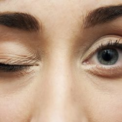 Eyelid Twitch: Cause, Treatment, & Prevention