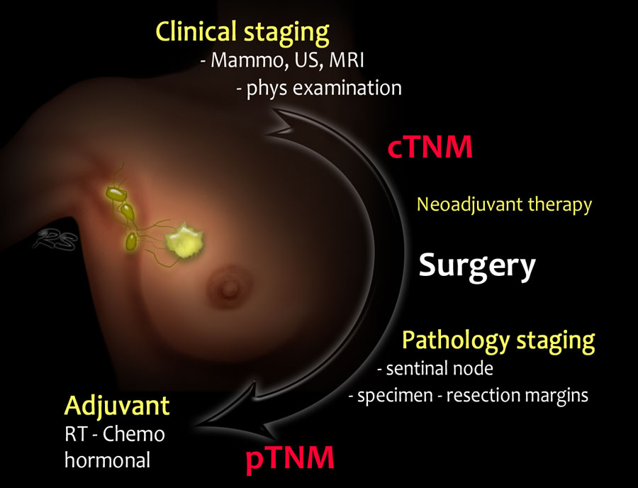 Managing Advanced-Stage Breast Cancer