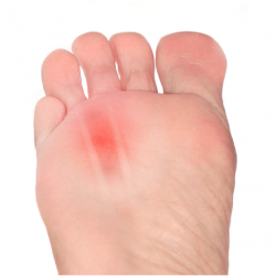 Morton's Neuroma Surgery – Tips on how to best prepare recoup