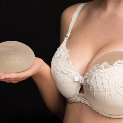 Augmentation Mammoplasty (AM)- Cosmetic Breast Surgery
