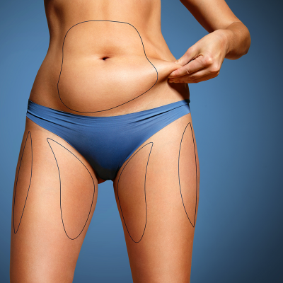 SmartLipo: The Latest Fat-Removal and Skin Tightening Procedure