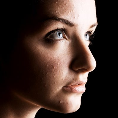 Milia: The Annoying White Bumps on Your Face
