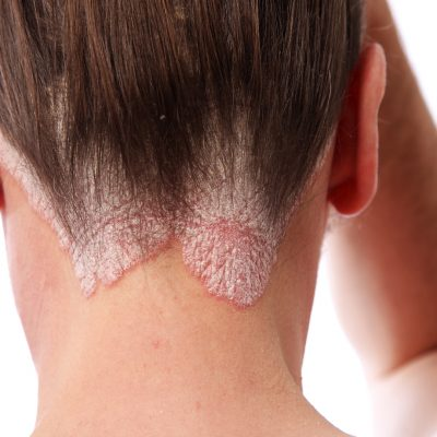 Avoid Scalp Psoriasis