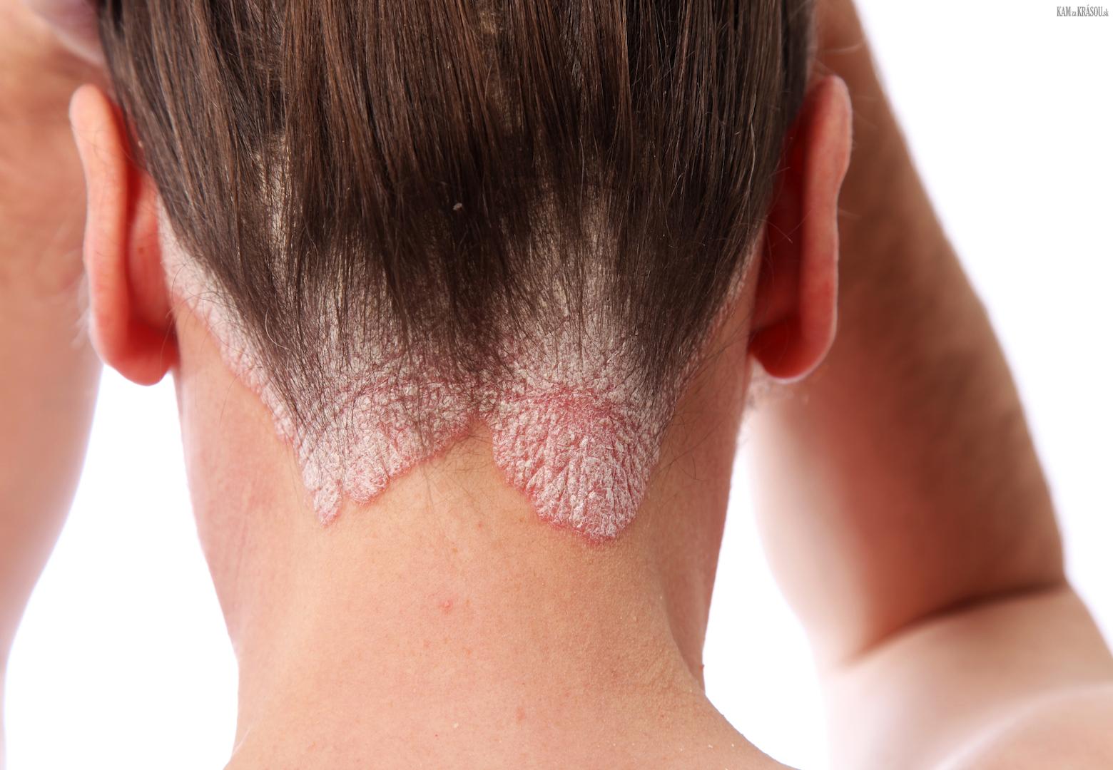 Avoid Scalp Psoriasis