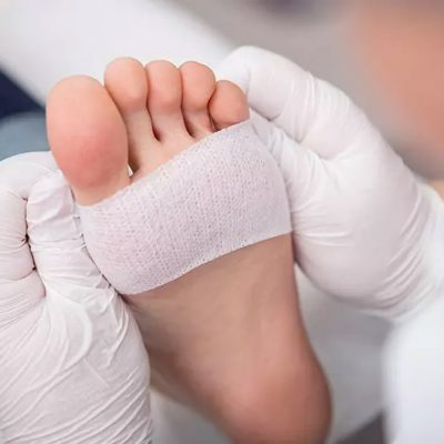 Botox For Foot Wounds