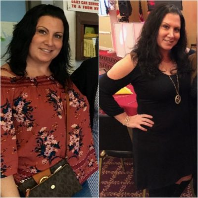 Kristine Immediato Dropped 45 Pounds With The Help Of Dr. David Greuner