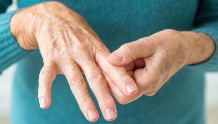 Pregnancies in women with rheumatoid arthritis