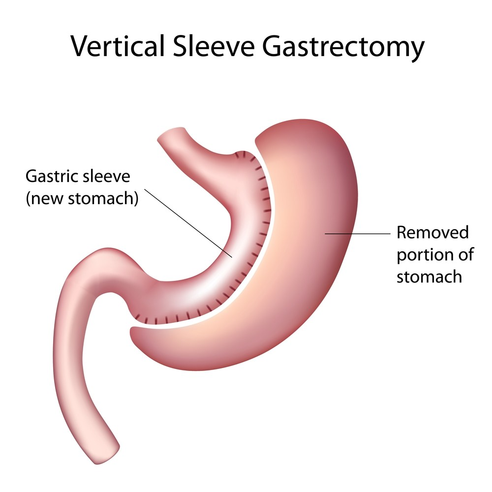 Vertical Gastrectomy