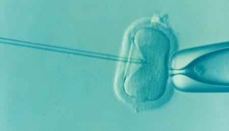 Largest Study of Childhood Cancer After IVF