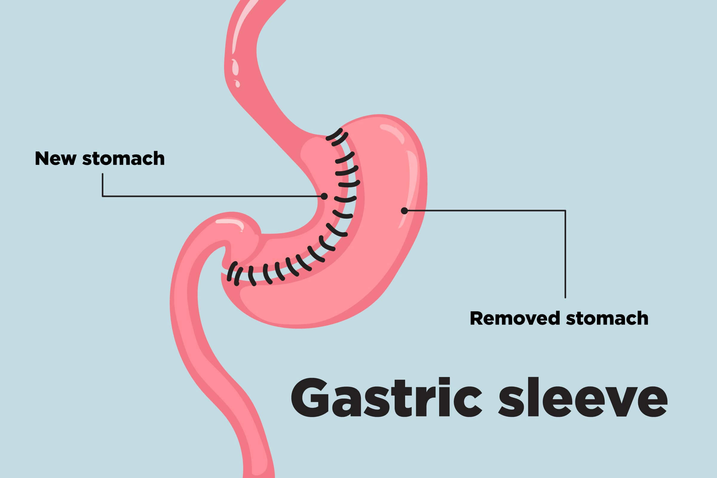 Am I a Candidate for Endoscopic sleeve gastroplasty?