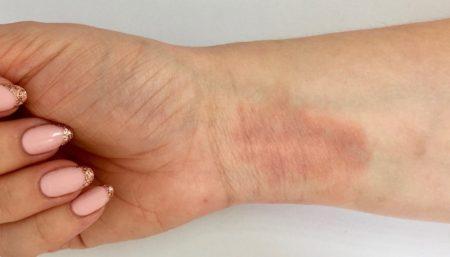 eczema_happens